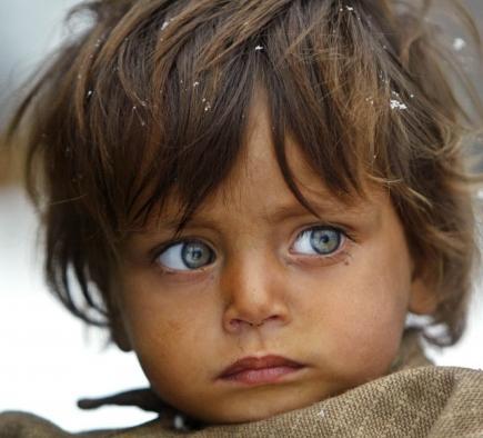 Zu wenig sauberes Wasser – ein Umstand, der Kinder besonders hart trifft.